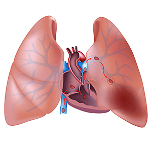 Протекание тромбоэмболии мелких ветвей легочной артерии