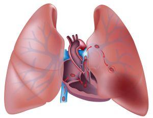 Опасность тромбоэмболии легочной артерии