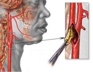 Удаление тромба из сонной артерии