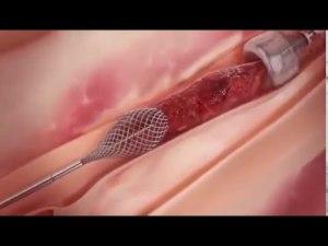 Удаление тромба с легочной артерии