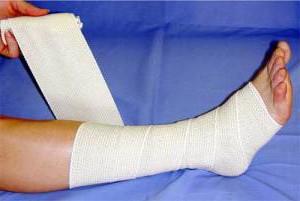 Бинтование ноги при варикозе