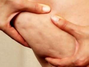 Как при варикозе бороться с целлюлитом