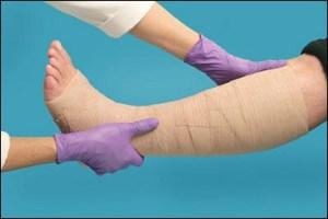 Как правильно бинтовать ногу при развитии варикоза