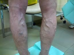 Как можно победить варикоз вен на ногах