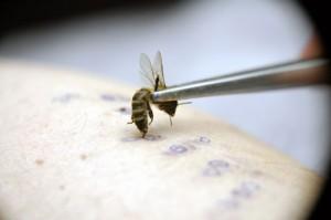 Пчелиный яд в лечении варикозной болезни