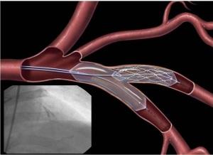Преимущества стентирования коронарных артерий