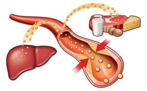 Причины развития атеросклероза БЦА
