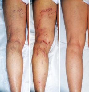 Почему на ногах при варикозе образуются синяки