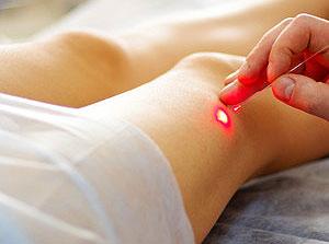 Эффективность лазера при удалении варикоза на ногах