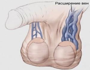 Развитие варикоза яичек у мужчин
