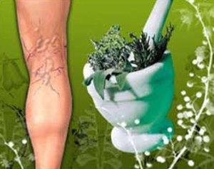 Какие из народных средств помогают от варикоза ног