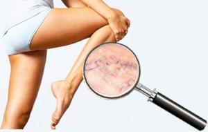 По какой причине развивается варикоз на ногах