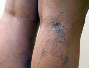 Синяки на ногах от варикоза