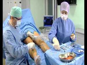 Виды оперативной коррекции варикоза на ногах