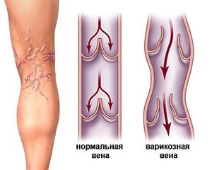 Развитие внутреннего варикоза на ногах