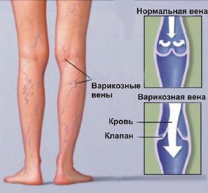 Варикоз на ногах - причины