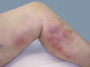 Причины, признаки и лечение тромбофлебита поверхностных вен