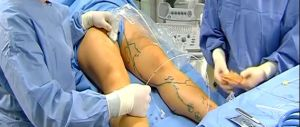 Лечение варикоза врачем