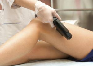 Возможно ли лечение варикоза без проведения операции