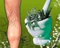 Лекарственные травы, избавляющие от варикоза