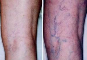 Почему на ногах появляются выступающие вены