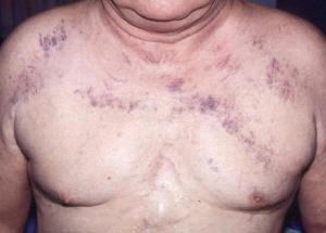 Что подразумевают под синдромом нижней полой вены