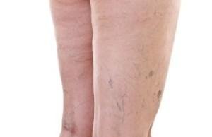 Внутренний варикоз на ногах симптомы