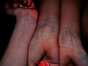 Причины боли вен на руках